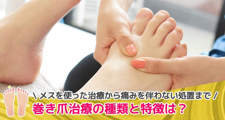 巻き爪治療の種類と特徴は?