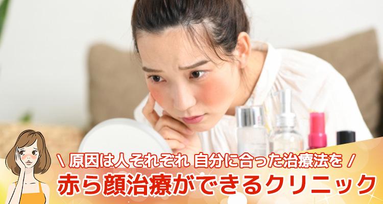 赤ら顔治療ができるクリニック