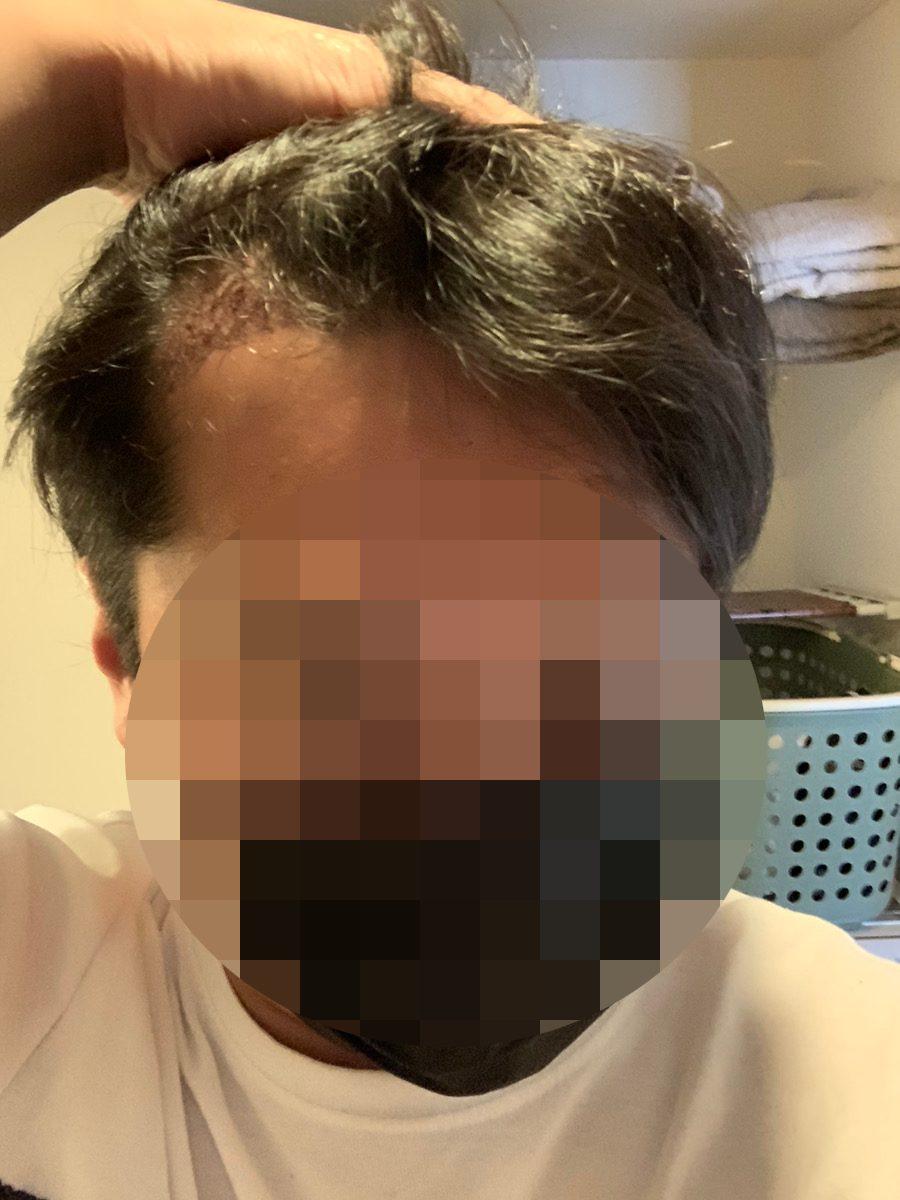 植毛手術翌日の男性の生え際