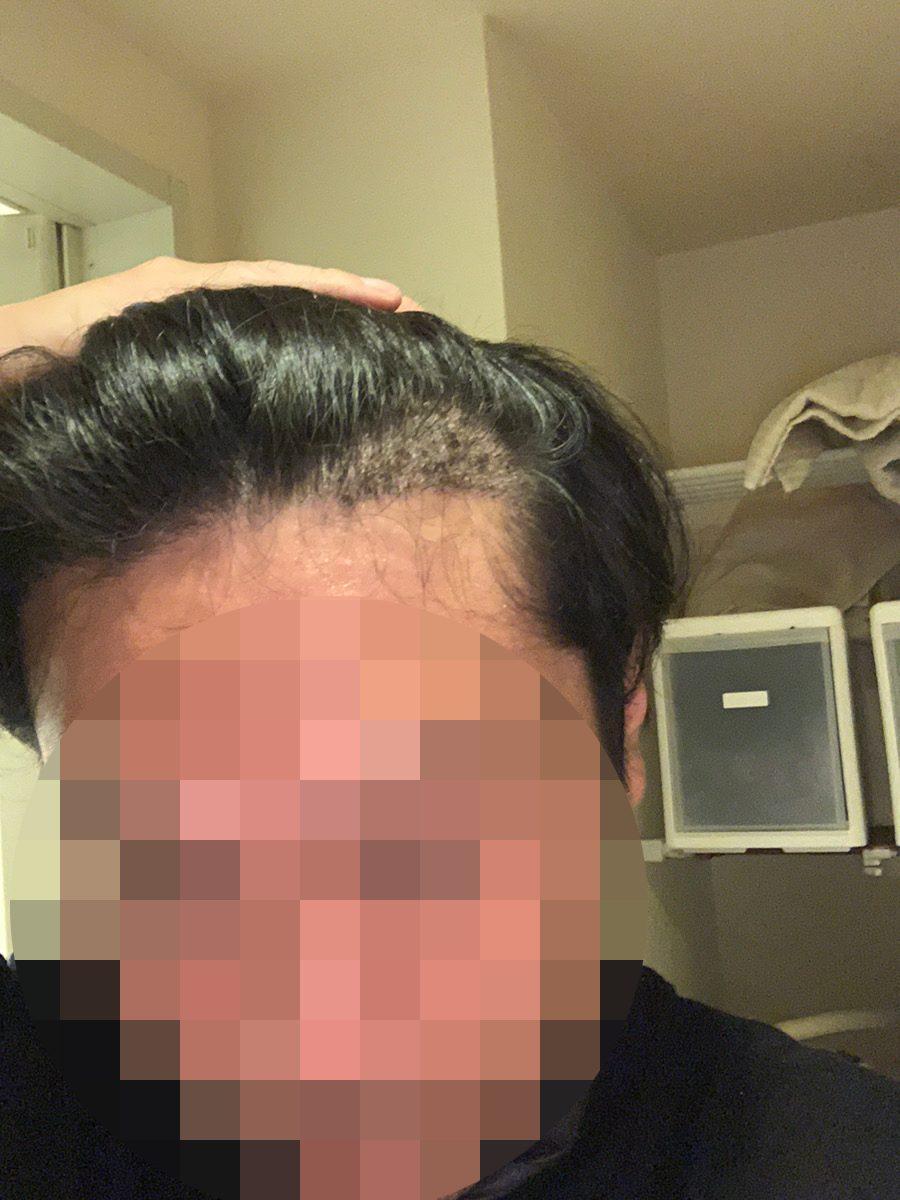 植毛手術1週間後の男性