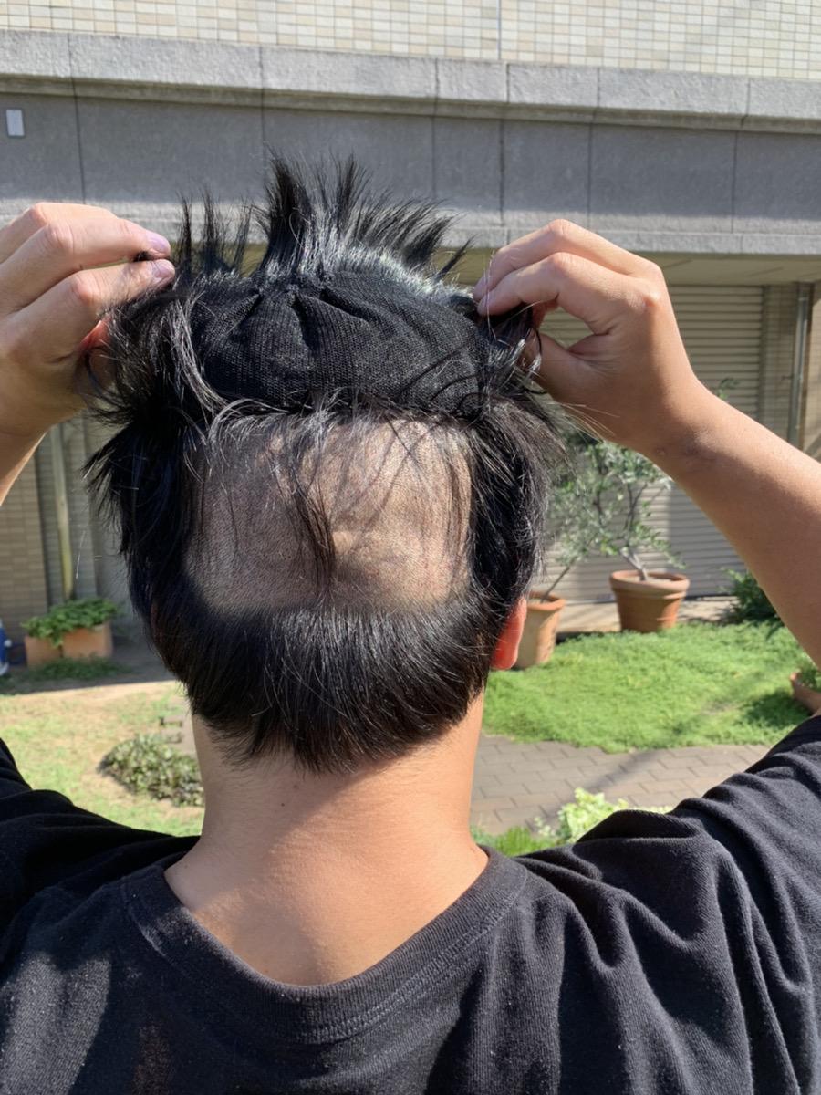 植毛手術1週間後の男性の後頭部