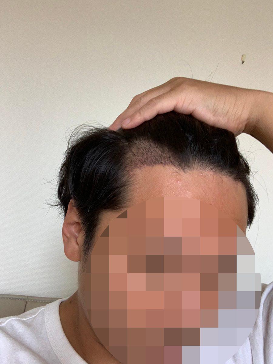 植毛手術1週間後の男性の生え際