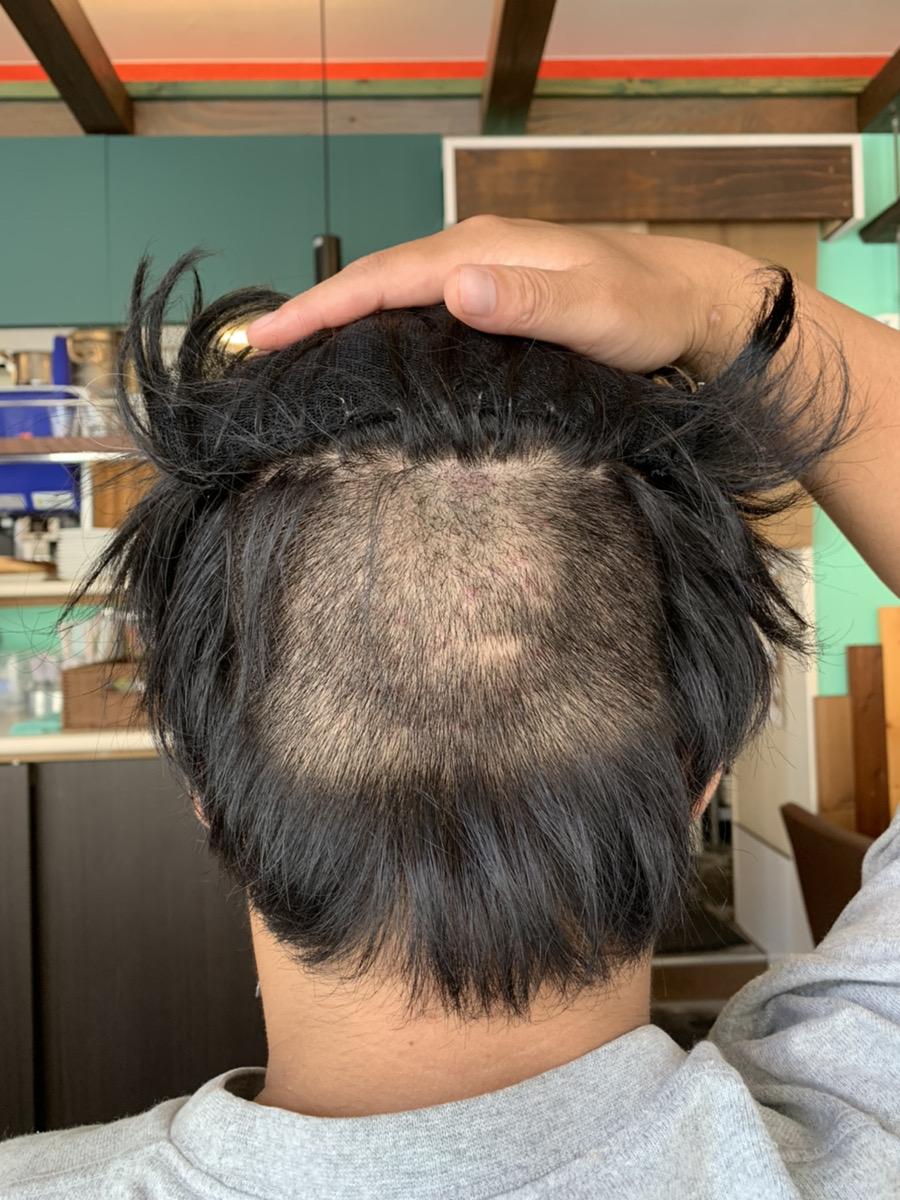 植毛手術2週間後の男性の後頭部