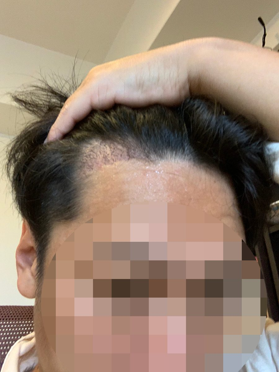 植毛手術3週間後の男性の生え際