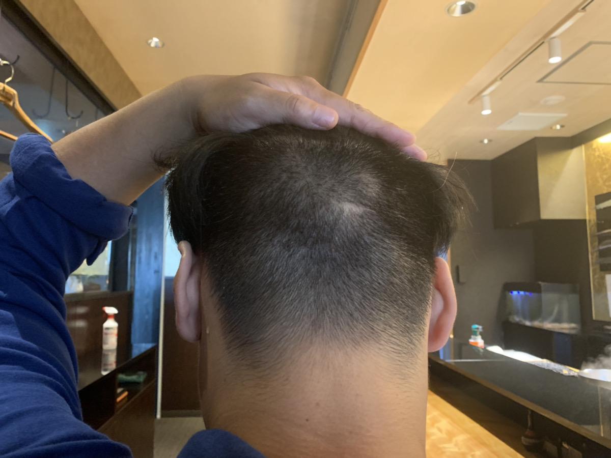 植毛手術3週間後の男性の後頭部